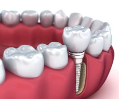 Dental Implants in Buffalo, NY Todd Shatkin DDS Dental Implant Dentist