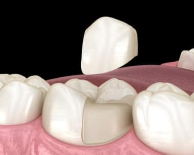 Porcelain Onlays in Buffalo, NY Todd Shatkin DDS Cosmetic Dentist