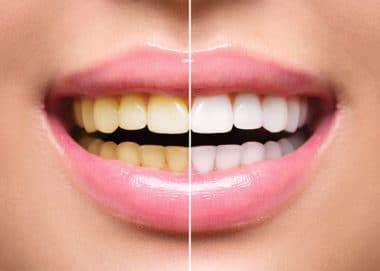 Teeth Whitening in Buffalo, NY | Todd Shatkin DDS | Buffalo Dentist